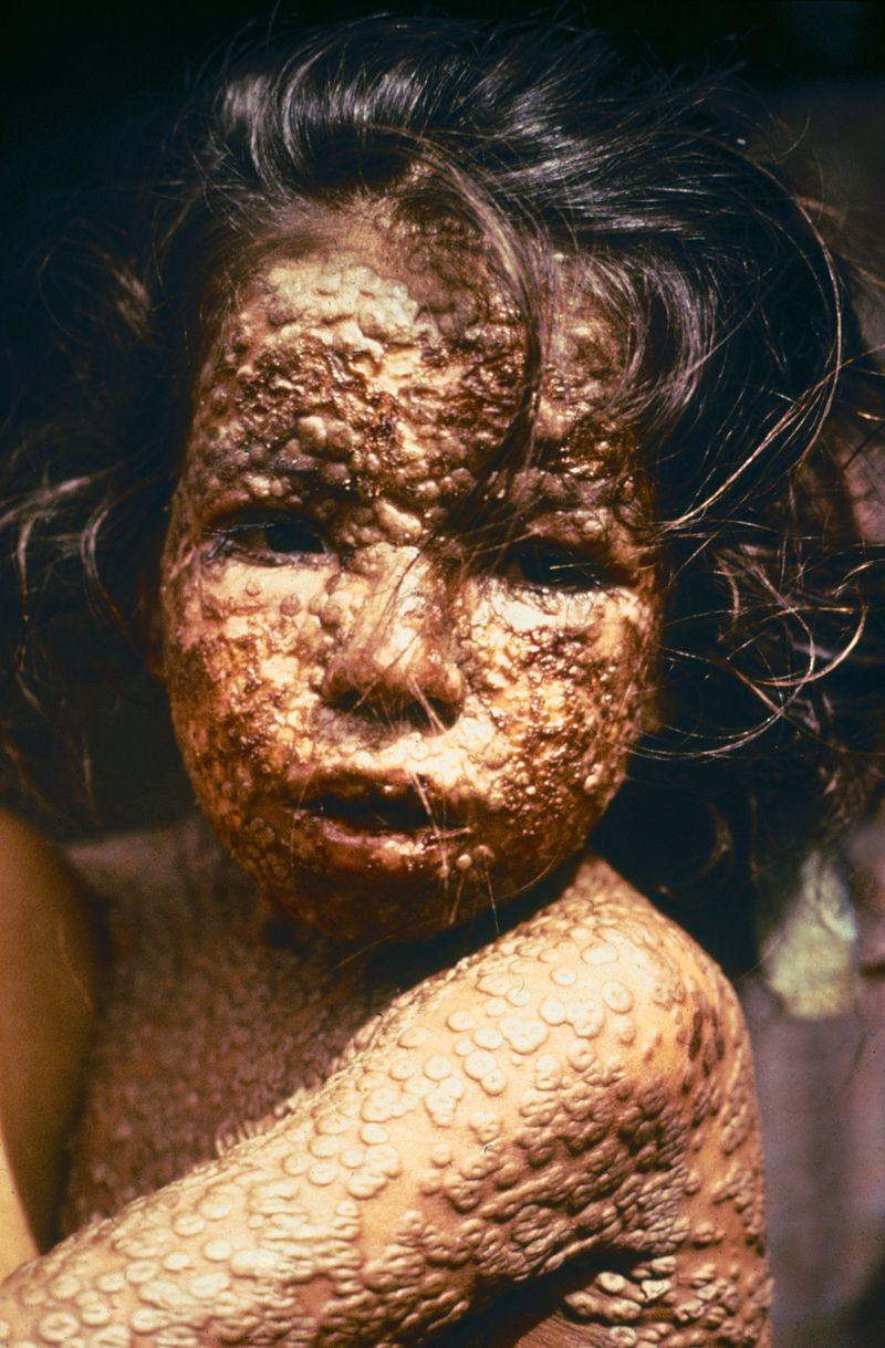 A varíola era uma doença muitas vezes mortal e altamente contagiosa. Na foto, uma criança de Bangladesh infectada com varíola em 1973.