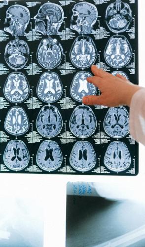 Ainda que enxerguem bem, suas estruturas cerebrais responsáveis por processar faces estão afetadas.