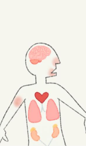 A própria perda de olfato e paladar podem ser consequência do vírus no cérebro.